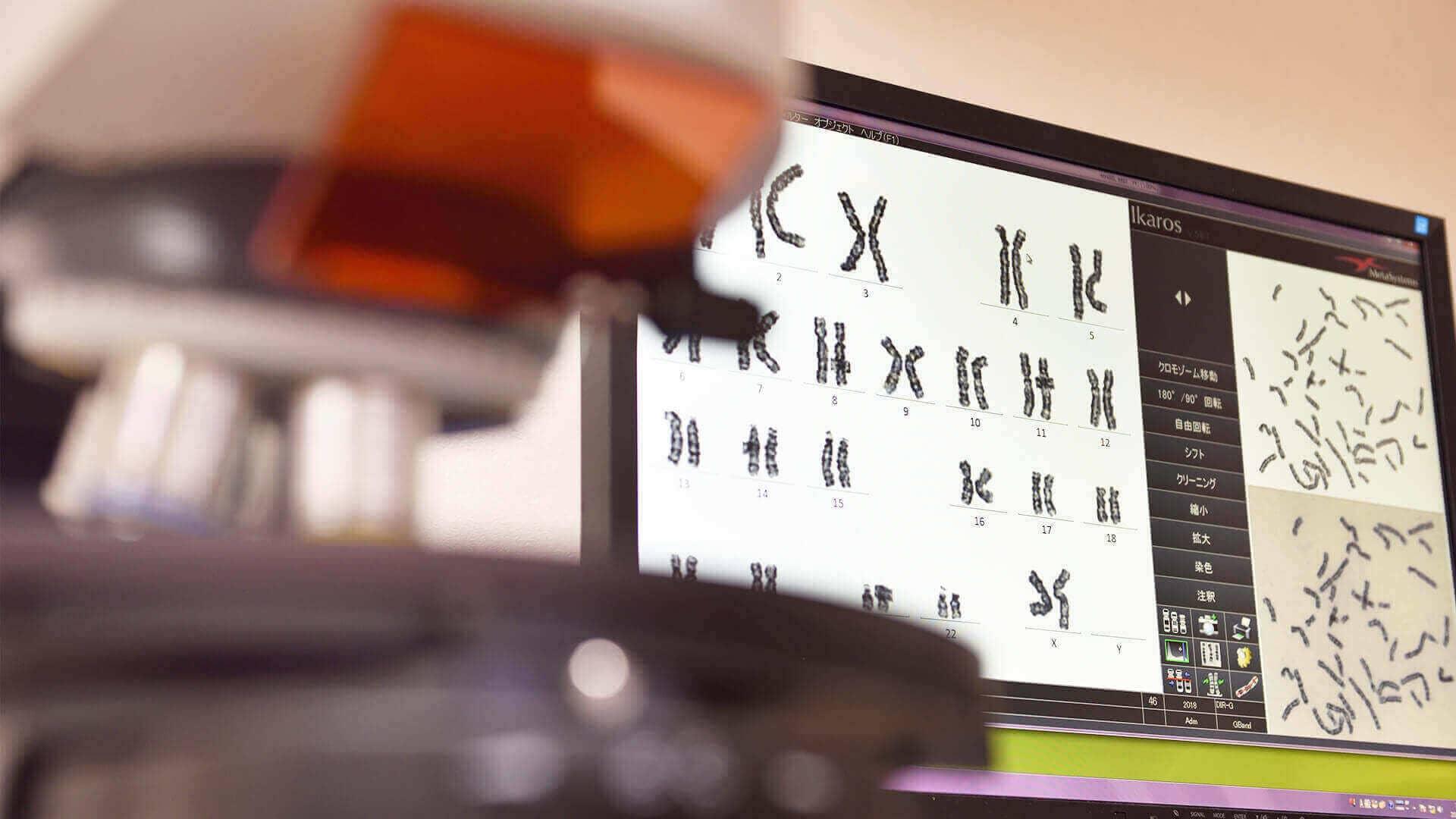 染色体異数性検査